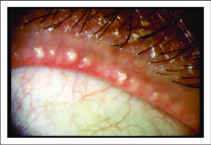 οπισθια βλεφαριτιδα-δυσλειτουργια μεϊβομιανων αδενων